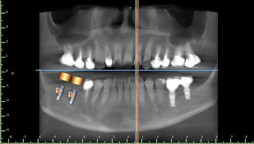 擔心植牙失敗風險?黃泓傑醫師分享植牙手術導板案例讓植牙定位精又準(1)