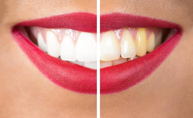sử dụng nghệ mật ong thường xuyên giúp trắng răng