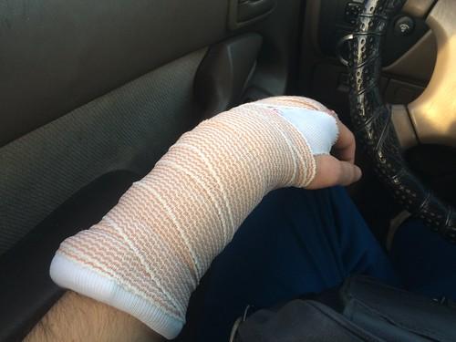 Hand Cast (April 13 2016)