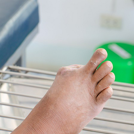 regular diabetic foot assessment could prevent the need for amputation