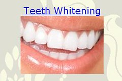 Presidio Dental Teeth Whitening San Francisco Ca Flickr