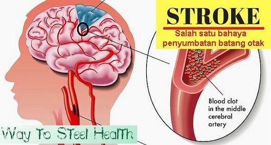 Obat penyumbatan batang otak