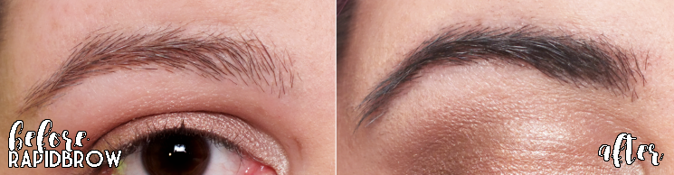rapid brow before and after