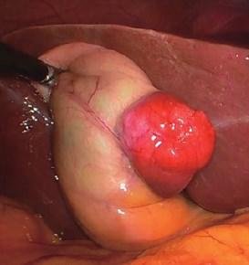 Pengobatan Tumor Saluran Empedu