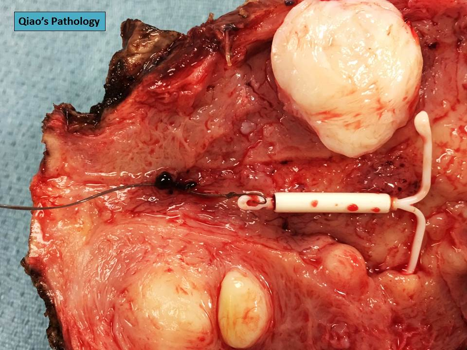 Qiao S Pathology Uterus With A Mirena Iud And Leiomyomas