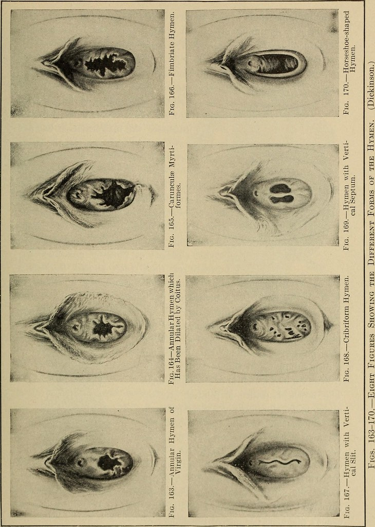 Image from page 415 of Gynecological diagnosis (1910