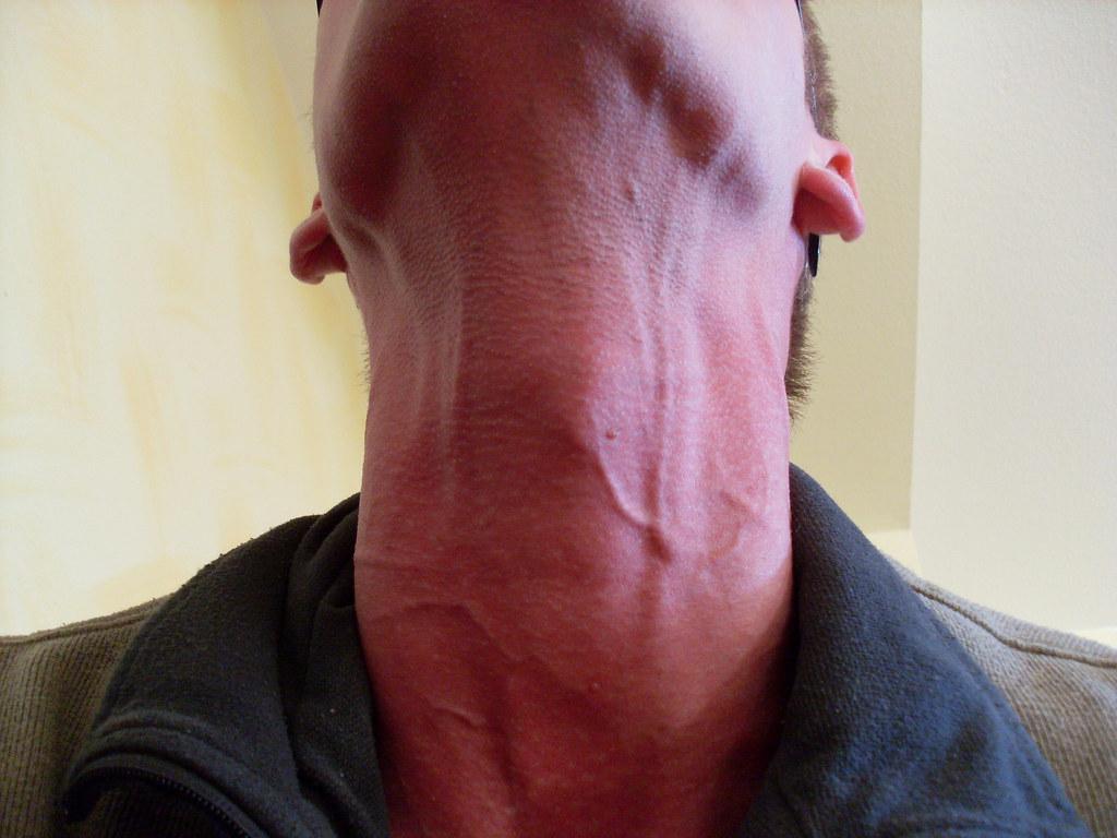 My Neck Veins 4 Stretched Neck Flue2010 Flickr
