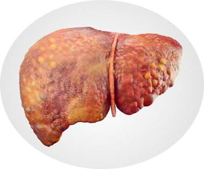 Obat Fatty Liver Herbal