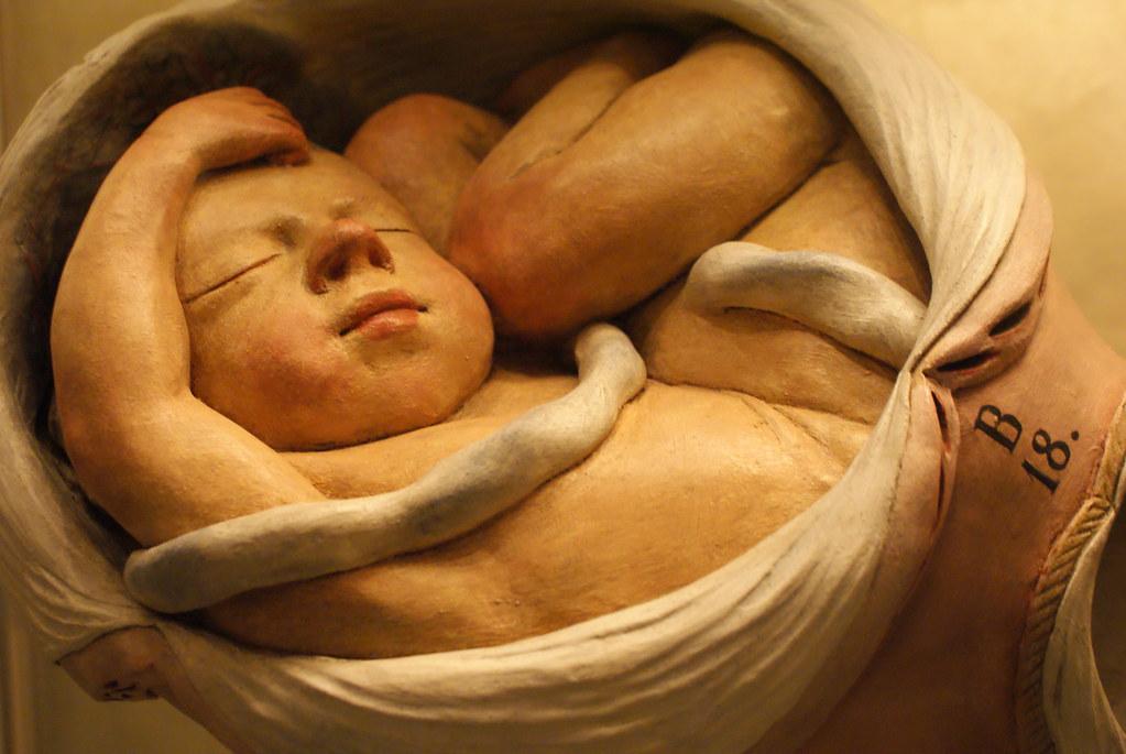 Dans cette position le foetus arrive mal positionné avec potentiellement un problème avec le cordon.