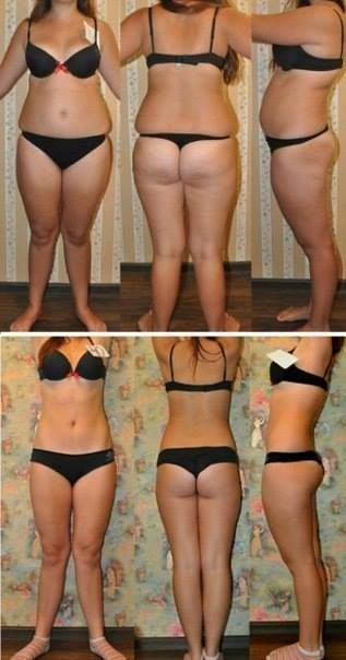 weight-loss-photos-before-and-after (36) | Flickr - Photo Sharing!