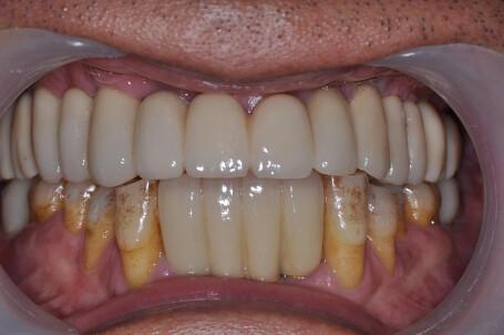 桃園平鎮牙醫告訴我 植牙不用再哇哇叫_v31475