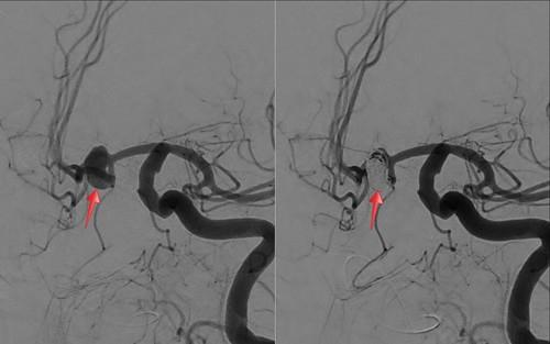 aneurisma embolizado