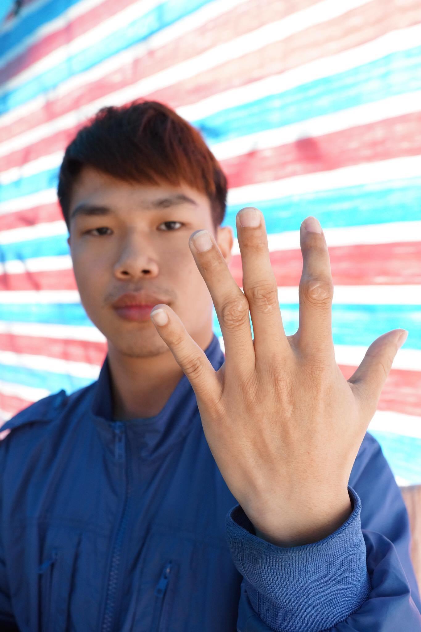 2014年3月,郭佳勳在維修車台時,廠房並沒有掛起維修牌,導致其他同仁誤觸啟動車台,郭佳勳說,「公司SOP有問題,我的手整個捲進去,骨折、筋也斷掉,縫了20多針。雖然休息一年多,到現在也不能彎曲,而且全都是疤痕。」(攝影:王顥中)