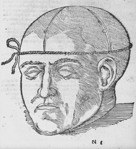 How to prepare the skull for surgery, brain unexposed, c. 16th century | by brain_blogger