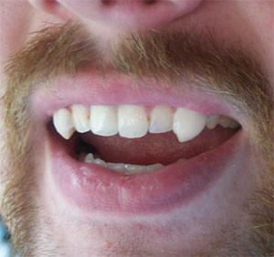 Image result for teeth flickr