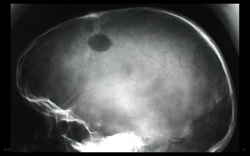 eosinophilic granuloma
