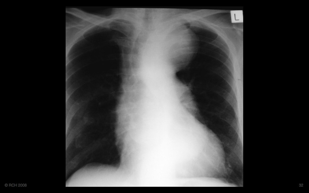 Mediastinal widening, asymptomatic, Case 2 - is it of conc… | Flickr