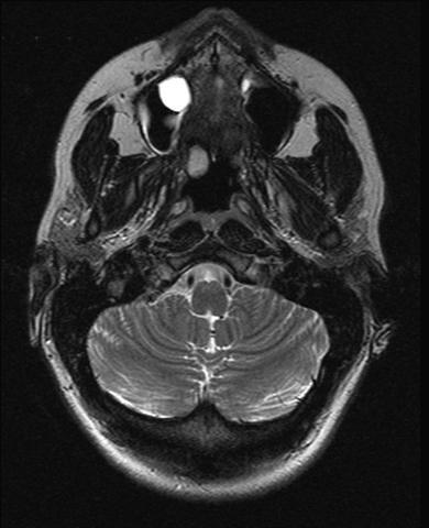 mucus retention cyst in sinus maxillaris | T2 MRI image, tru… | Flickr