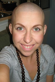 And the hair is gone! Chemotherapy