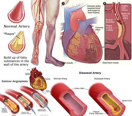 Peripheral Artery Disease Natural Treatment