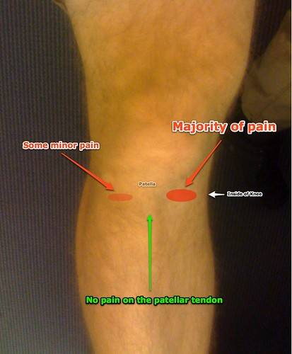 Diagram Of My Knee Pain