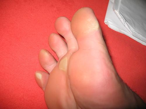 2007 07 16 - 4021 - Zermatt - My feet after hiking