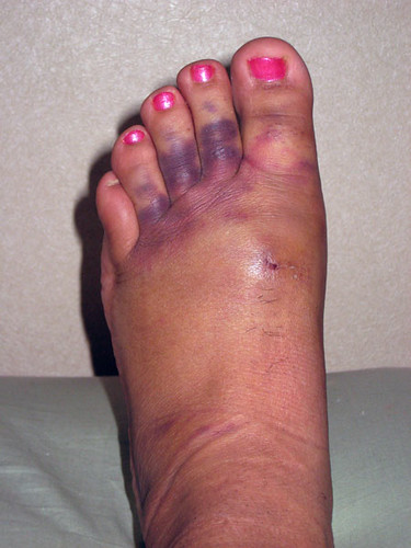 Bruised Big Toe From Workout Shoes