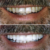 Teeth Whitening Results - Robert M. | by NYC Dentist