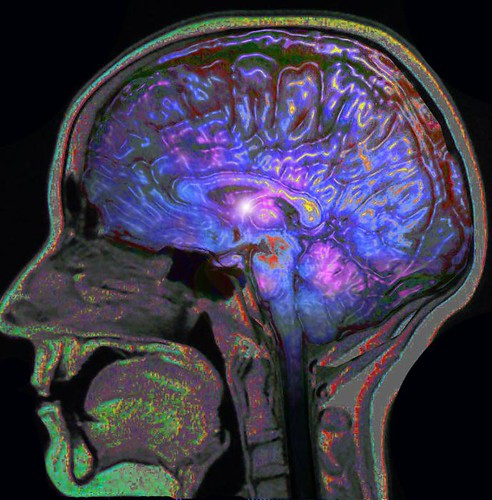 Color MRI Brain