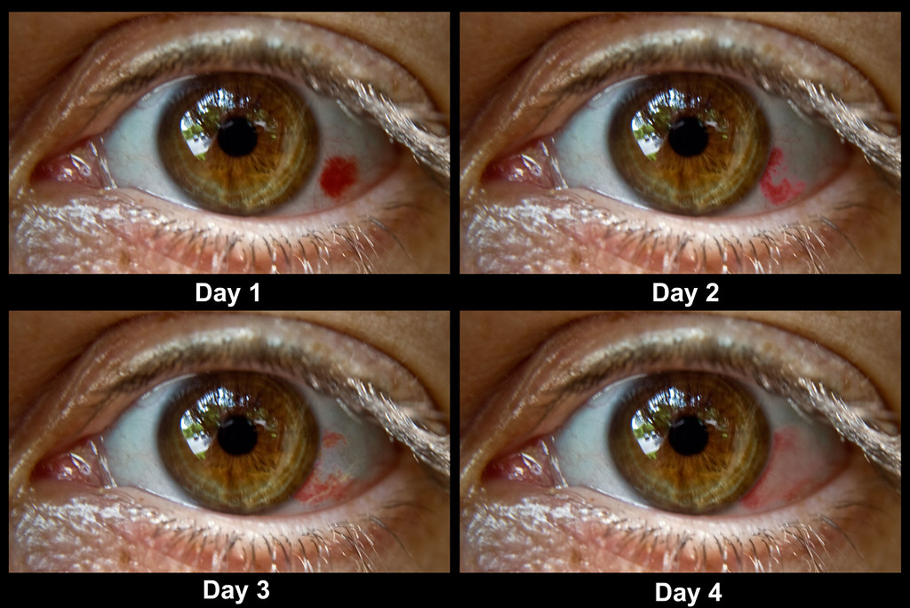 subconjunctival hemorrhage (bleeding in the eye) | a subconj… | flickr, Skeleton