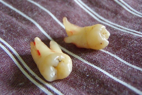 wisdom teeth | by david.hansen_NZ