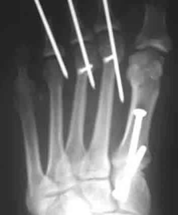 Hammertoe & Bunion Surgery X-Ray | Pins in toes and screws ...