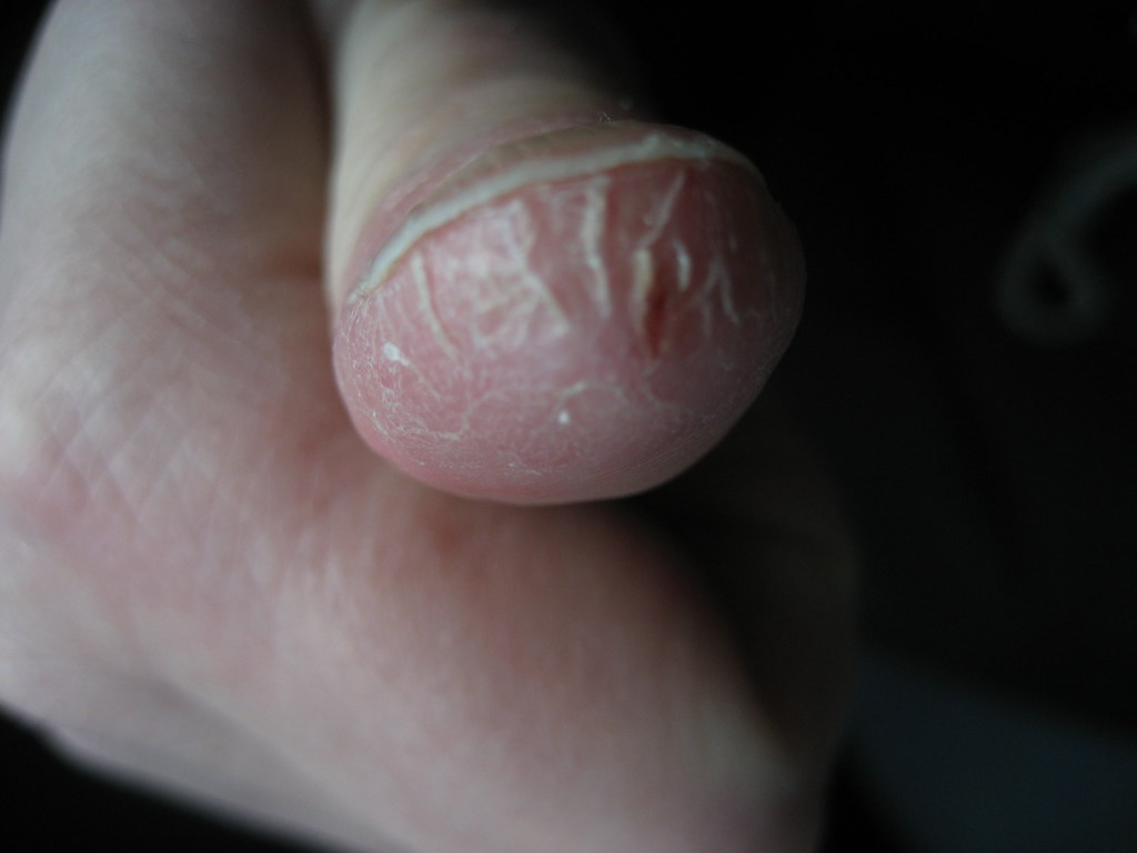 OUCH ! - Dry cracked skin around thumb | This happens to me … | Flickr