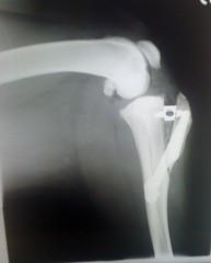 X-Ray of Jespah's knee after | by jespahjoy