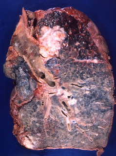 20 enfermedades respiratorias yahoo dating 7
