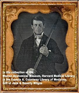 Meet Phineas Gage... Or how flickr changed our life | by Photo_History - Here but not Happy