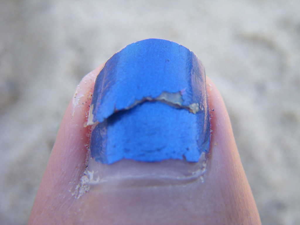 cracked toenail | day at the beach resulted in a cracked nai… | Flickr