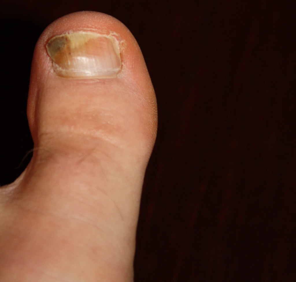PODIATRIST DISCUSSES HOW TO AVOID RUNNERS TOE - PODIATRIST