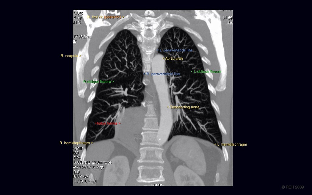 Med 5 Talk Chest 2 - CT: CT Anatomy, coronal MPR 4 annotat… | Flickr
