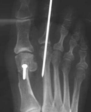 Hammertoe & Bunion Surgery | Post op X-ray after a bunion ...