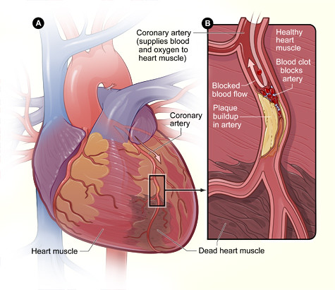 Heart With Muscle Damage and a Blocked Artery | Figure A is … | Flickr