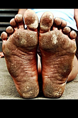 Tough Callous Dirty Feet!! | Just_go_Barefoot | Flickr