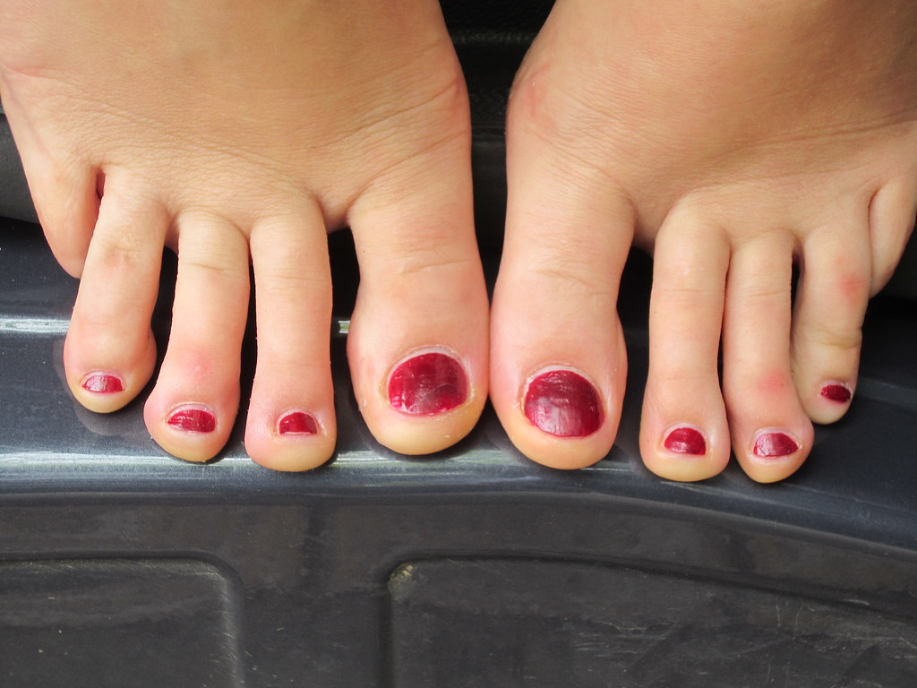 Related Keywords & Suggestions for Long Toes Pictures Of The Most Ugly People In The World