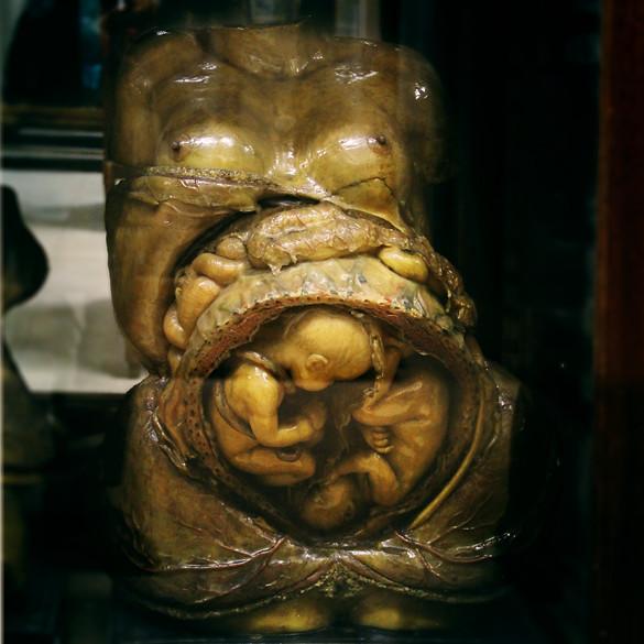 Museo Anatomía embarazo de gemelos | La Playa de Madrid | Flickr