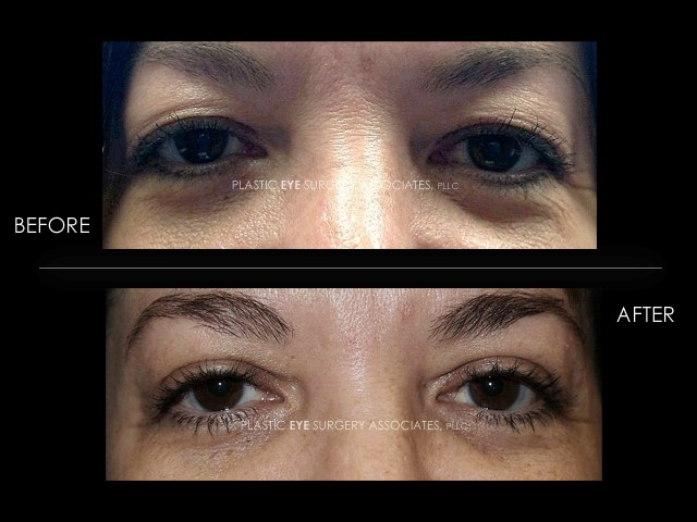 Female Blepharoplasty