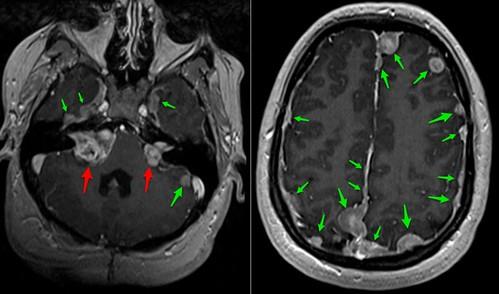 neurofibromatosis tipo II
