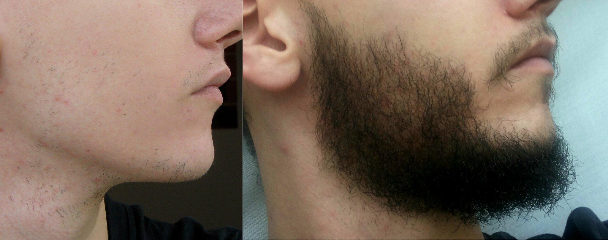 Как растут волосы на лице