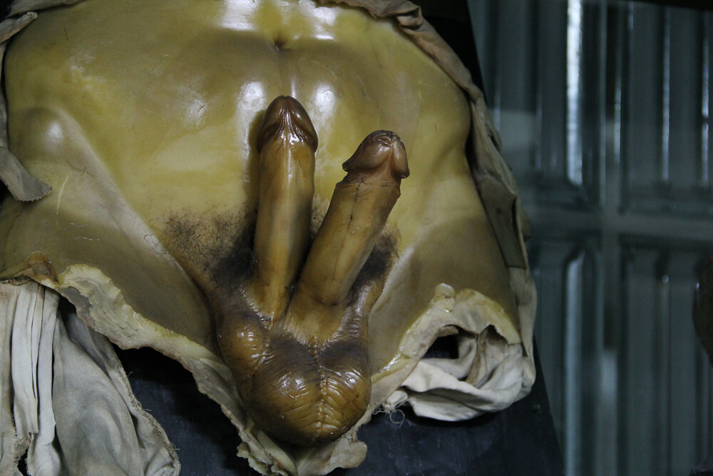 Museo Anatomía falo doble | La Playa de Madrid | Flickr