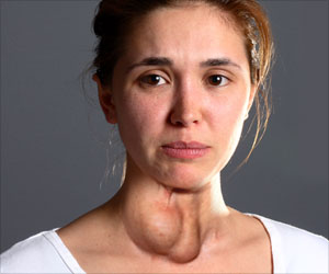 Obat Tiroid Bengkak Di Apotik