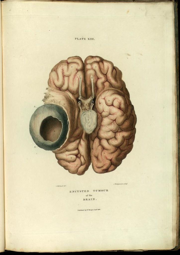 Brain Cyst Descriptive Title Brain Cyst Actual Title Pl Flickr